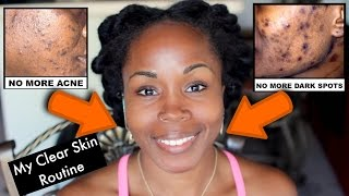 Get Rid of Acne Scars, Dark Spots and Hyperpigmentation | My NEW Daily Face Care Routine