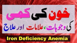 Iron Deficiency Anemia Symptoms Causes & Treatment With Natural Foods || Health Tips In Hindi / Urdu