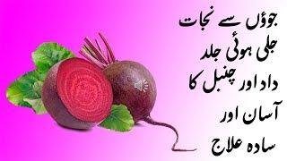 How to Cure Eczema and Lice with Beet Root II Chuqandar sy Daad Chambal aur Jooun ka Desi Ilaj