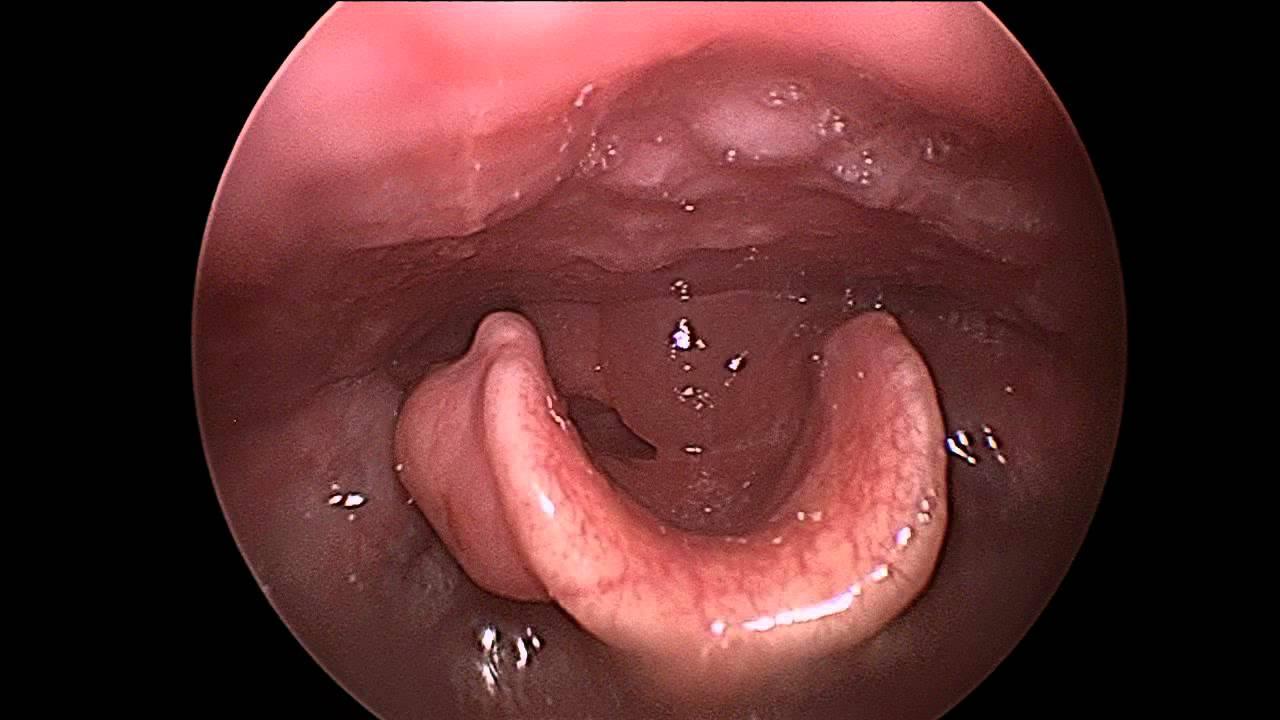Recurrent adult epiglottitis