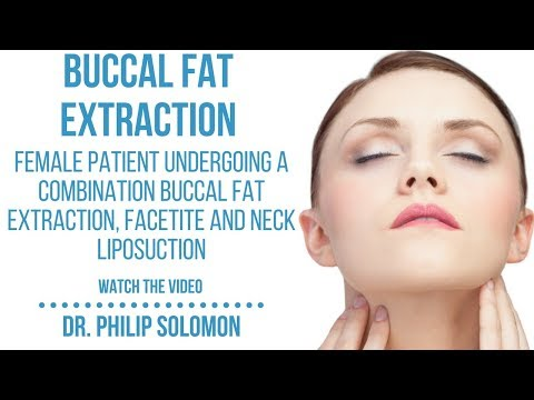 Buccal Fat Extraction, Facetite and Neck Liposuction | Dr  Philip