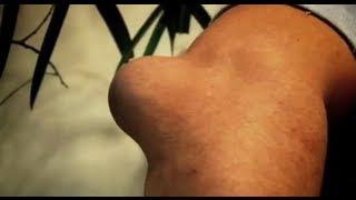 Swollen Elbow - Bizarre ER