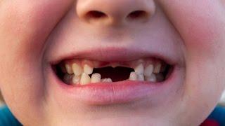 Geç Çıkan Dişler
