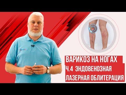 Эндовенозная лазерная облитерация. Варикоз на ногах 2ч.