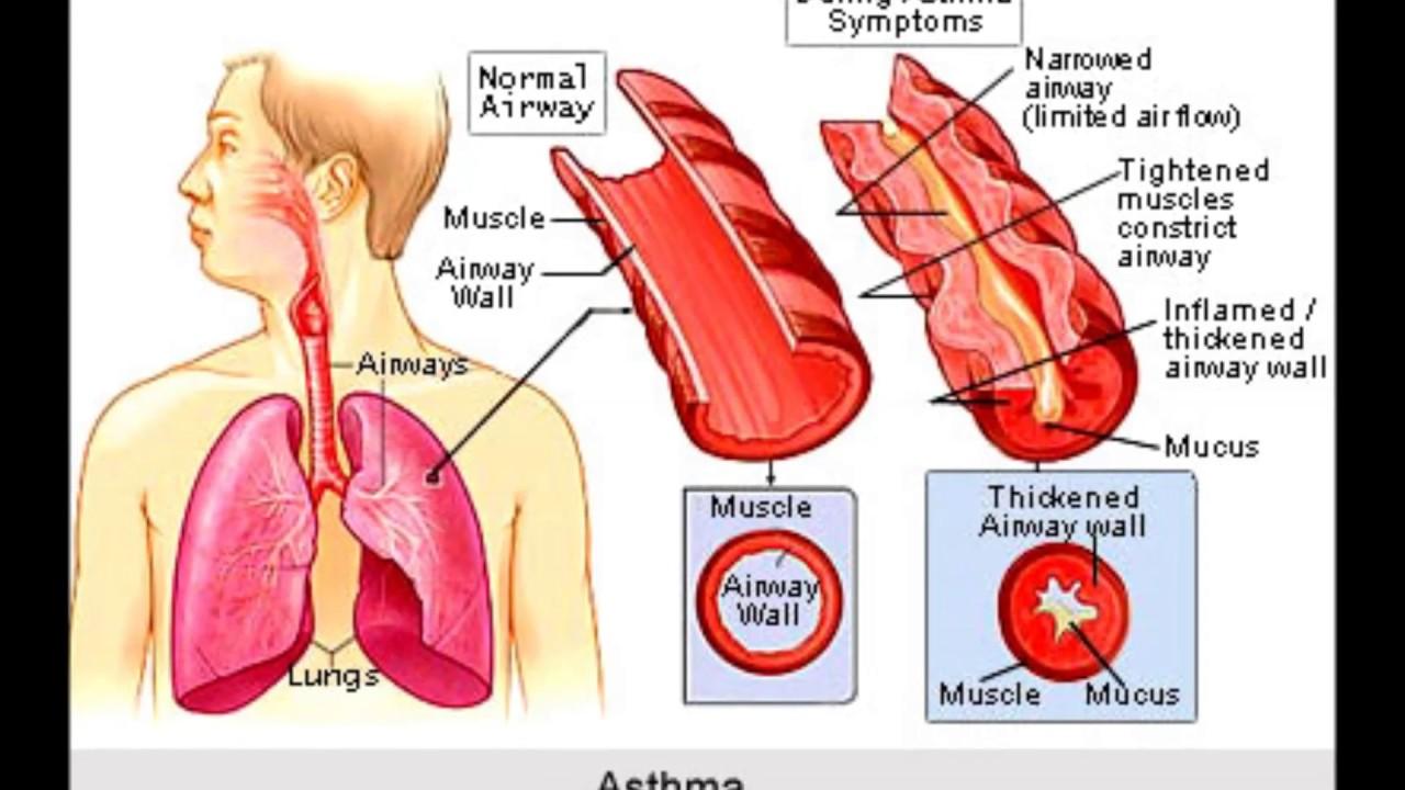 Smoking risks sexual health tobacco of