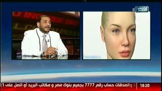 الناس الحلوة   فنيات استخدام الخيوط فى عالم التجميل مع دكتور حسام سيد مصطفى