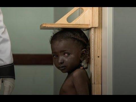 Little girl braves war, and cancer, in Yemen