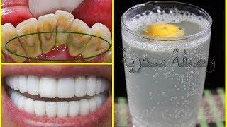 أقسم بالله لن تلجأ لطبيب الأسنان لتبييض الأسنان ولا لإزالة الجير سيسقط وحده بعد المضمضة بهدا المحلول