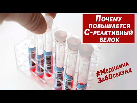 Высокий C-реактивный белок | Причины высокого С-рб | Почему повышен СРБ в крови