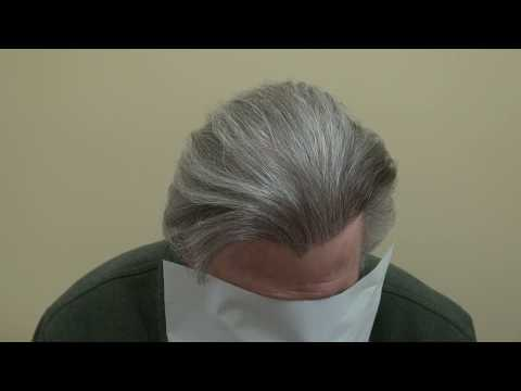 perfect-hairline-artistry-restoration-by-hair-transplant-surgery-before-after-dr.-diep-bald