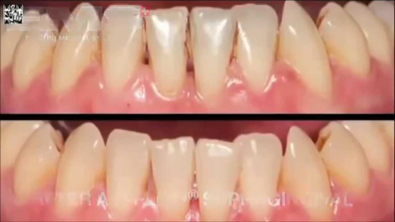 полное отбеливание зубов