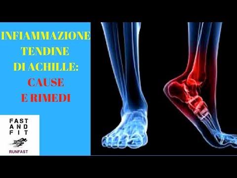 Bildergebnis für infiammazione tendine achille foto  biffi