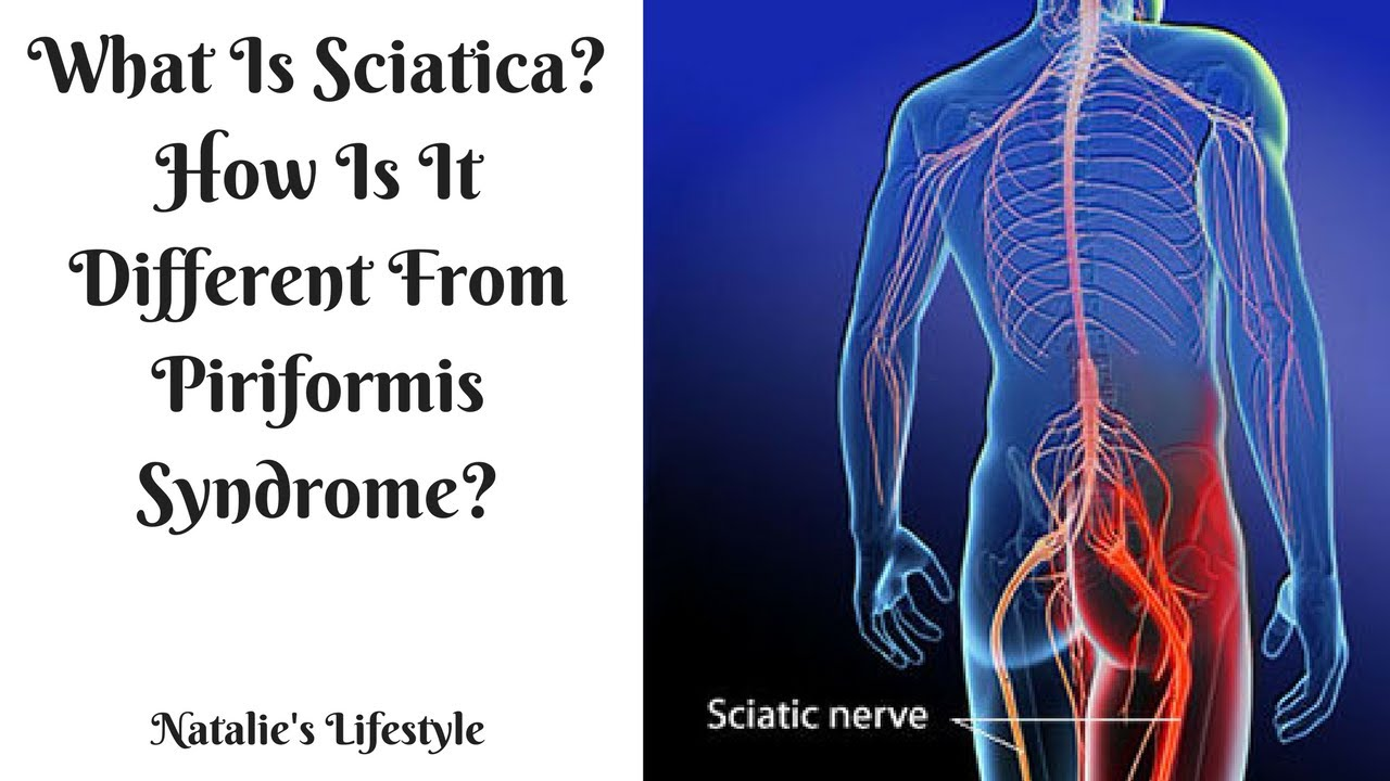 What Is Sciatica? How Is It Different From Piriformis Syndrome ...
