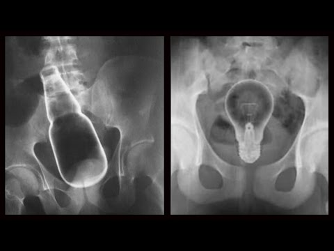 Bizarre X Rays - When People Stick Weird Things Inside Themselves