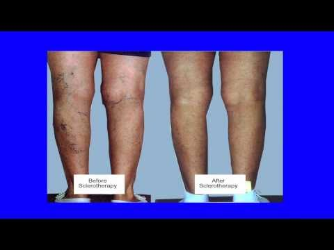 what-are-spider-veins?-how-are-they-treated?