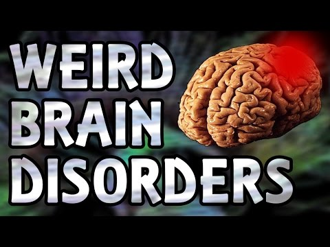 Top 5 Weird Brain Disorders