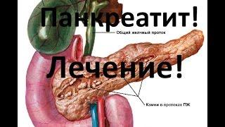 Панкреатит - причины, симптомы и лечение