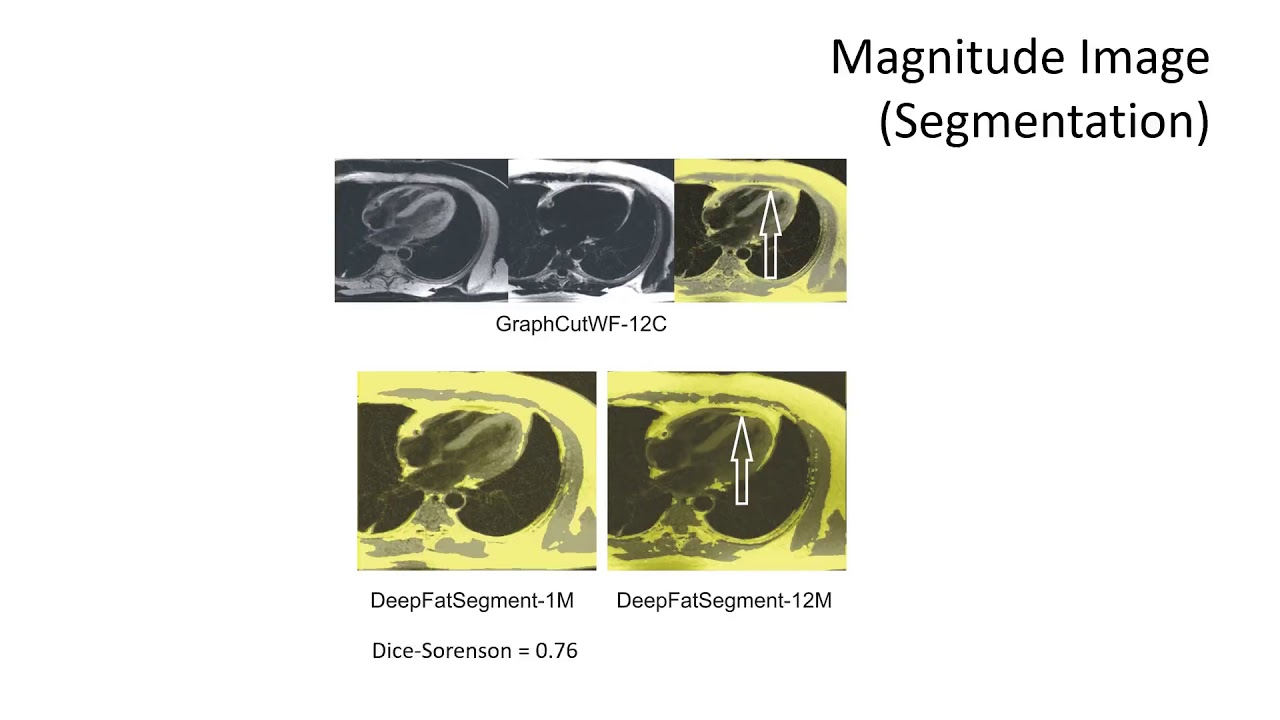 James Goldfarb - Water-Fat Separation and Parameter Mapping in Cardiac MRI  via Deep Learning CNN