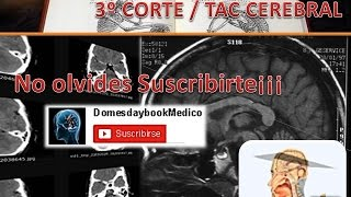 CORTE 3 TAC CEREBRAL