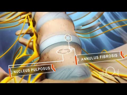 Animação Hérnia de Disco