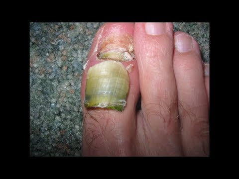 Toenail Fungus Treatment – The Natural Way to Remove Toenail Fungus