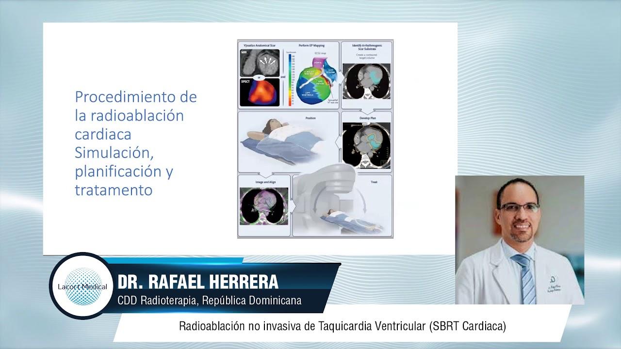 Experiencia de Radioablación Cardiaca por el Dr. Rafael Herrera