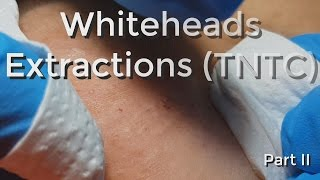 Whiteheads Extraction (TNTC) - Session I - Part 2 of 3