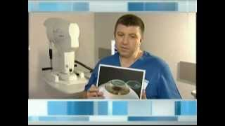 Упражнения для восстановления зрения методом бейтса видео