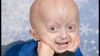 Video Progeria documentary - kaylee halko, Adalia rose, Sam berns, Hayley okines download MP3, 3GP, MP4, WEBM, AVI, FLV September 2018