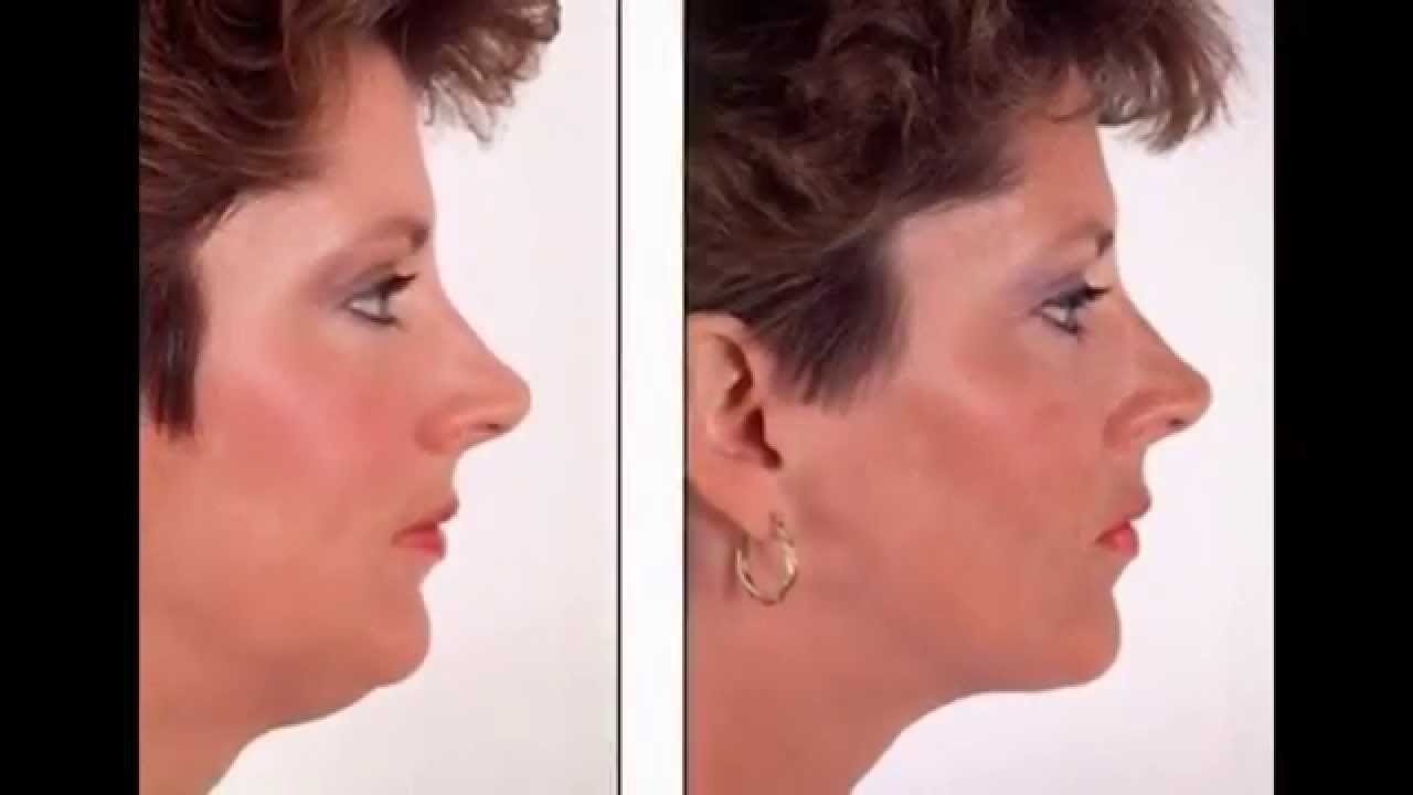 New Instant Face Lift Tape - YouTube #HY25