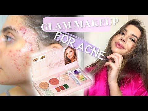 Full Glam Makeup With ACNE!!! || Featuring Casey Holmes x Physicians Formula thumbnail