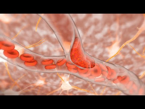 Ischemic Stroke - YouTube - 20.4KB