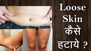 How to get rid of flabby skin? Loose skin से छुटकारा पाएं । Hindi