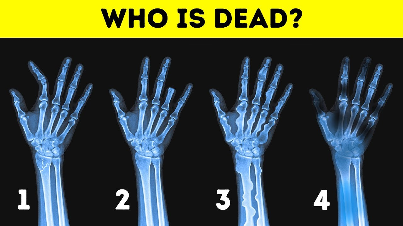 16 TRICKS AND RIDDLES TO BOIL YOUR BRAIN