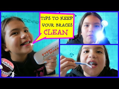 """HOW TO  TO KEEP YOUR BRACES CLEAN """"ALISSON"""""""