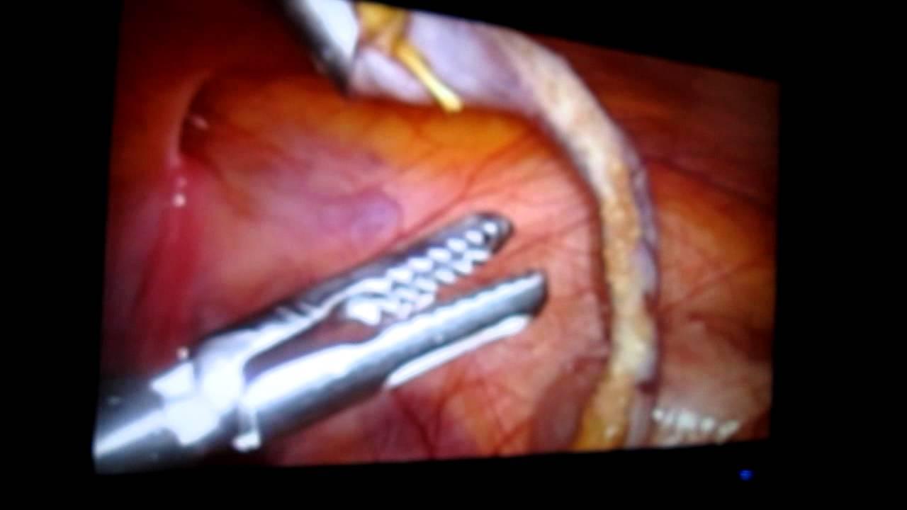 Operație pentru a elimina video varice