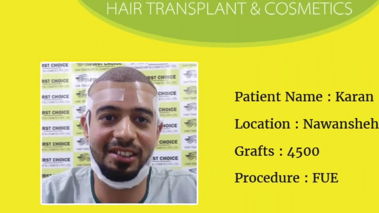Hair Transplant Surgery in Ludhiana -4500 grafts @FCHTC