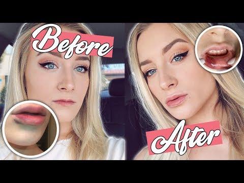 I GOT LIP INJECTIONS! | Vlog