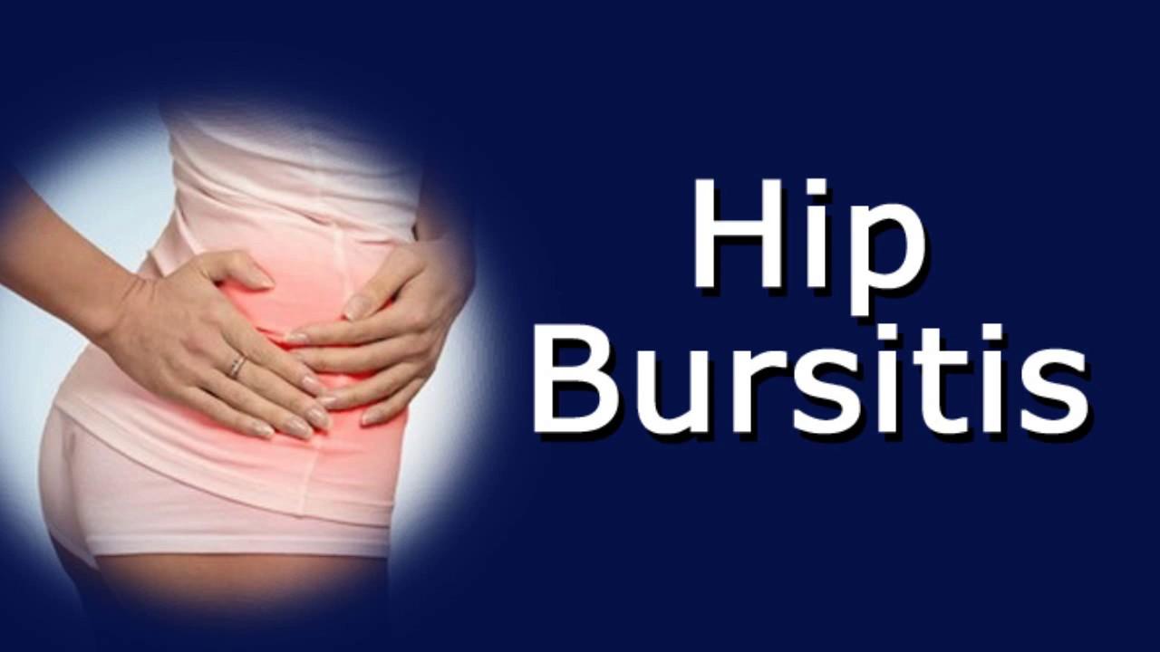 Hip Bursitis - YouTube