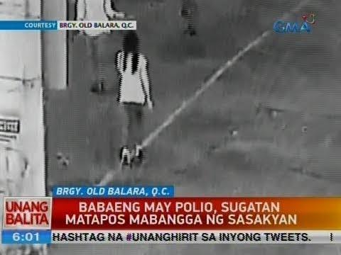 UB: Babaeng may polio, sugatan matapos mabangga ng sasakyan