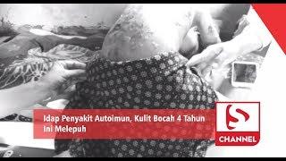 Jakarta, tvOnenews.com - Lidah Buaya Ampuh Redakan Tukak Lambung, Gangguan Pencernaan, Hingga Luka B.
