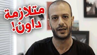 متلازمة داون! | al waja3