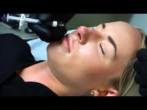 Nosefiller 5 minute nosejob. Dr Leung Hongkong visiting Klinik34 & Dr Berne
