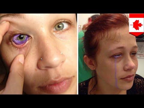 Tato bola mata: mata sang model harus diambil akibat tato mata yang gagal - TomoNews