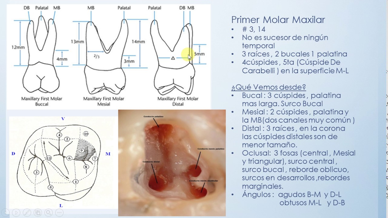Primer Molar Superior - YouTube