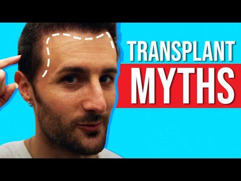 Top 3 - Biggest Hair Transplant Myths!