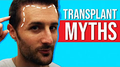 Top 3 - Biggest Hair Transplant Myths!