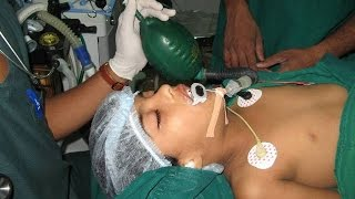 Snoring in Children-Obesity and Tonsil Adenoid Dr Paulose FRCS (ENT)