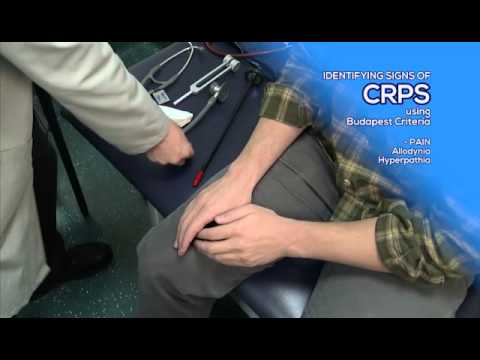 How to Diagnose CRPS by Utilizing the Budapest Criteria - RSDSA