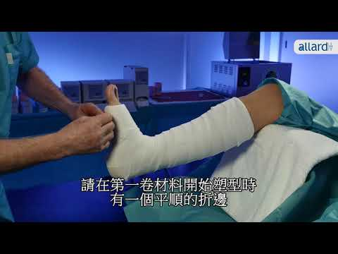 CHINESE X-LITE Short Leg Cast